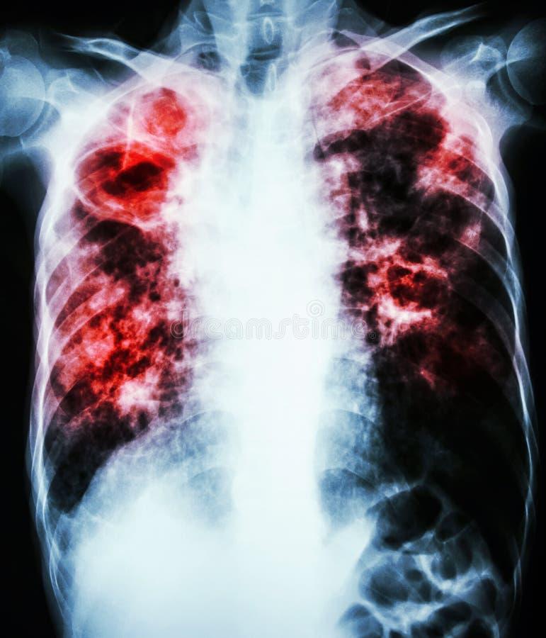 Tuberkulose der atmungsorgane lizenzfreie stockfotos