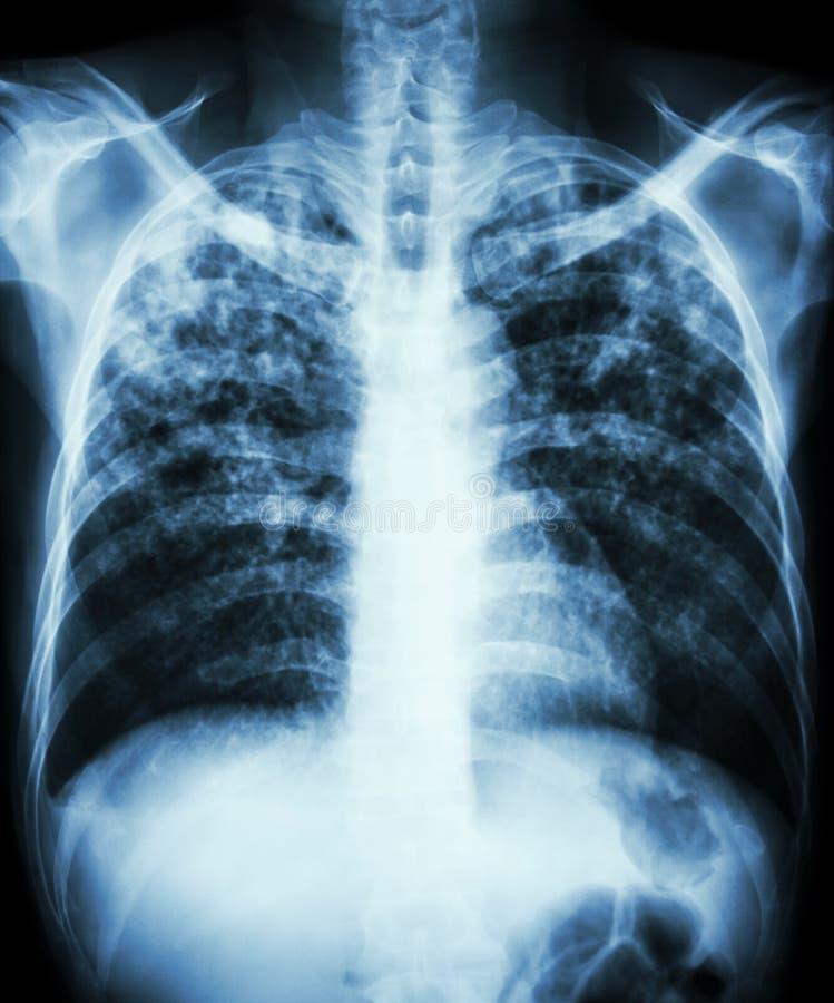 Tuberkulose der atmungsorgane stockfotografie