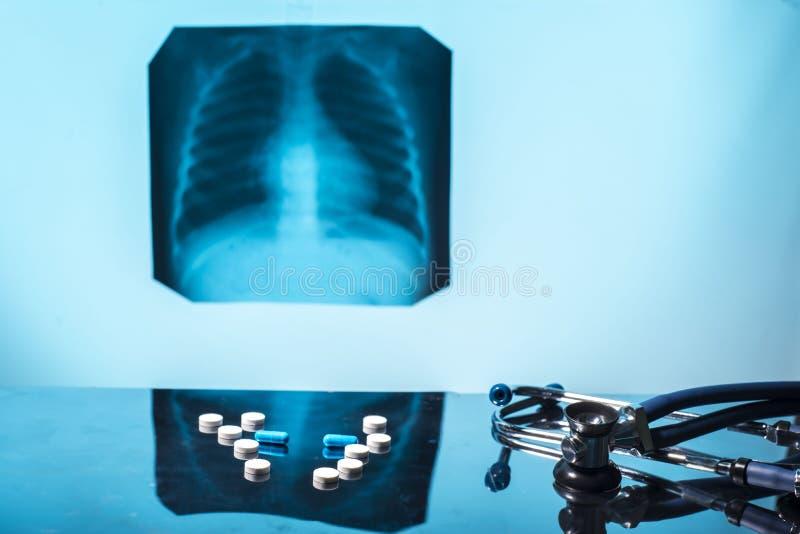 Tuberkulose- der atmungsorganebehandlungskonzept Medizinischer Stilllebenpillen-Stethoskopröntgenstrahl stockbild