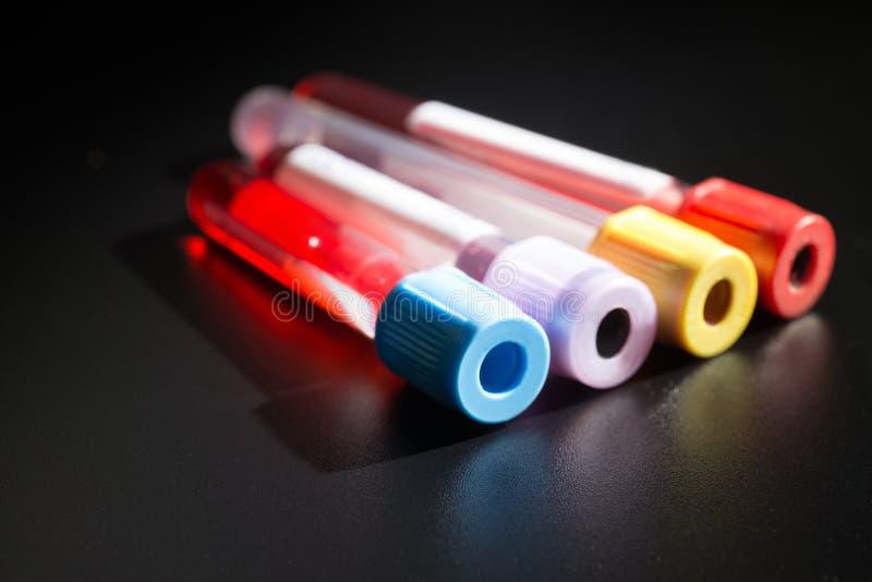Tubes à vide pour rassembler des prises de sang dans le laboratoire photographie stock libre de droits