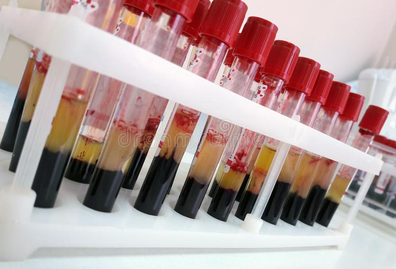 Tubes of blood sample for lab testing royalty free stock photos