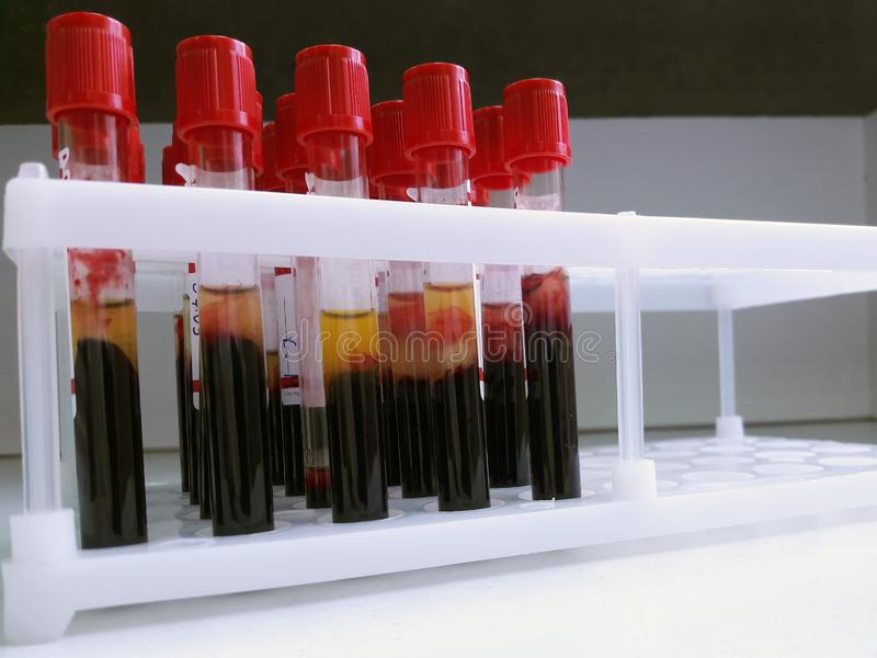 Tubes of blood sample for lab testing royalty free stock photography