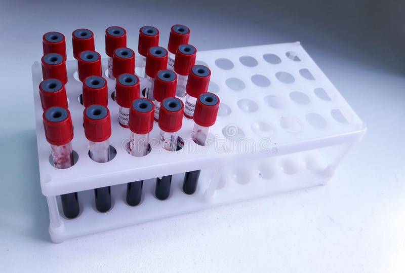 Tubes of blood sample for lab testing stock photography