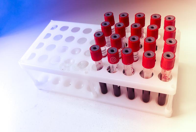 Tubes of blood sample for lab testing stock images