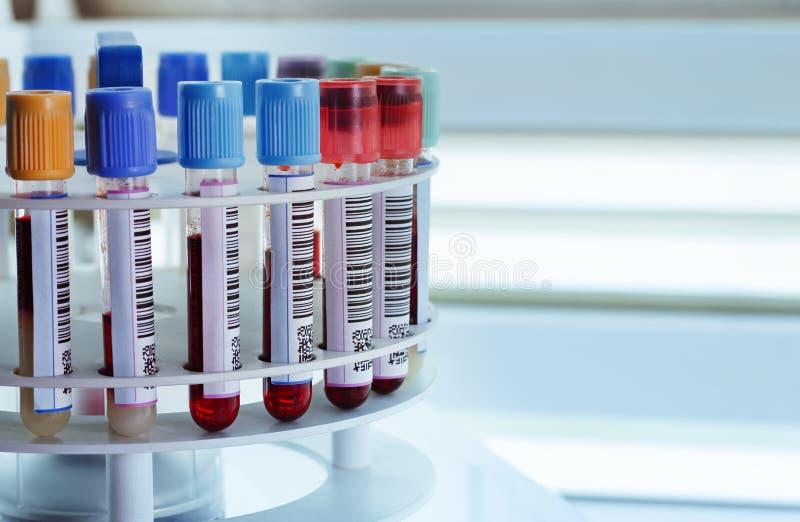 Tubes pour la centrifugeuse photos libres de droits