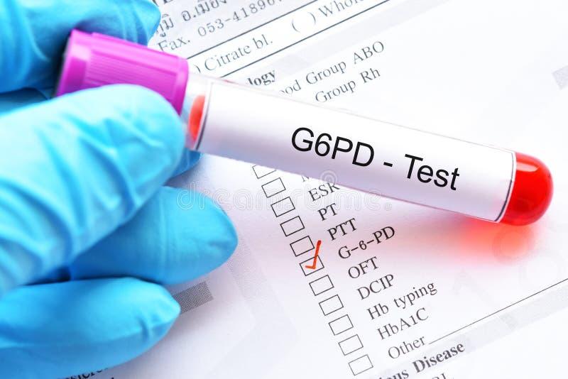 Tubo da amostra de sangue para o teste de G6PD foto de stock royalty free
