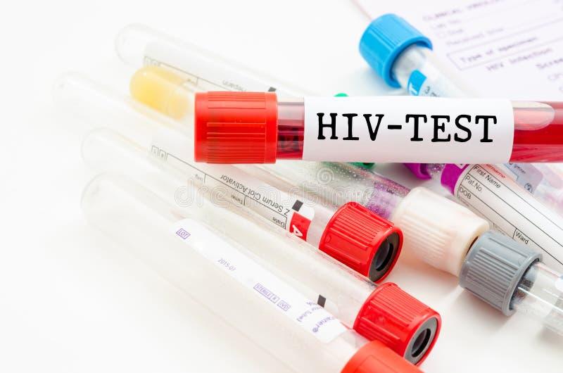Tubo de la colección de la sangre de la muestra con la prueba del VIH imagen de archivo libre de regalías