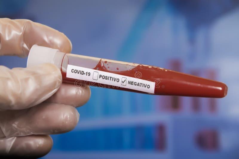 Tubo Di Campionamento Del Sangue Coronavirus Covid-9 fotografia stock