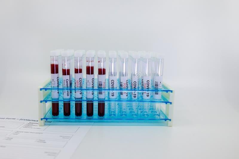 Tubos de ensaio com amostra de sangue para o coronavírus, vírus da cova-19 e tubos vazios Pedido do formulário de ensaio e ensaio imagem de stock