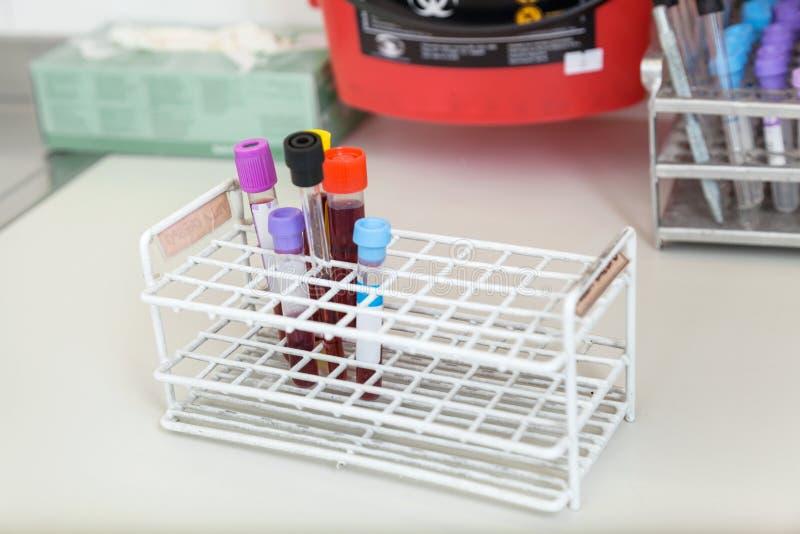 Tubos de ensayo con las muestras de sangre foto de archivo