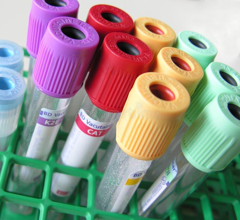 Tubos de la sangre fotos de archivo libres de regalías