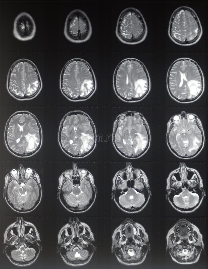 Tumeur cérébrale de MRI image libre de droits