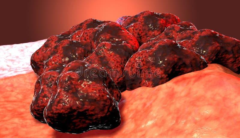 Tumeur de cellule cancéreuse, illustration médicale illustration libre de droits