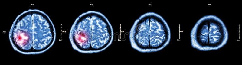 Tumor cerebral (CT-exploración de la película del cerebro: muestre la parte del cerebro con el tumor) imagen de archivo libre de regalías