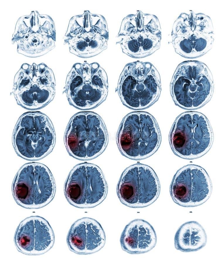 Tumor cerebral de la demostración del cerebro de MRI en el lóbulo parietal derecho imágenes de archivo libres de regalías