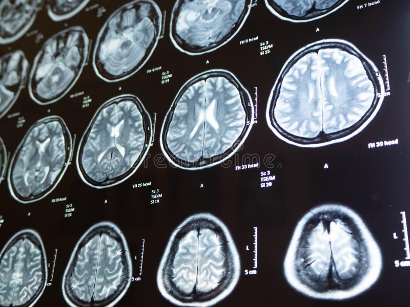 Tumor cerebral del rayo de la película x mi mather, Bangkok, Tailandia foto de archivo libre de regalías