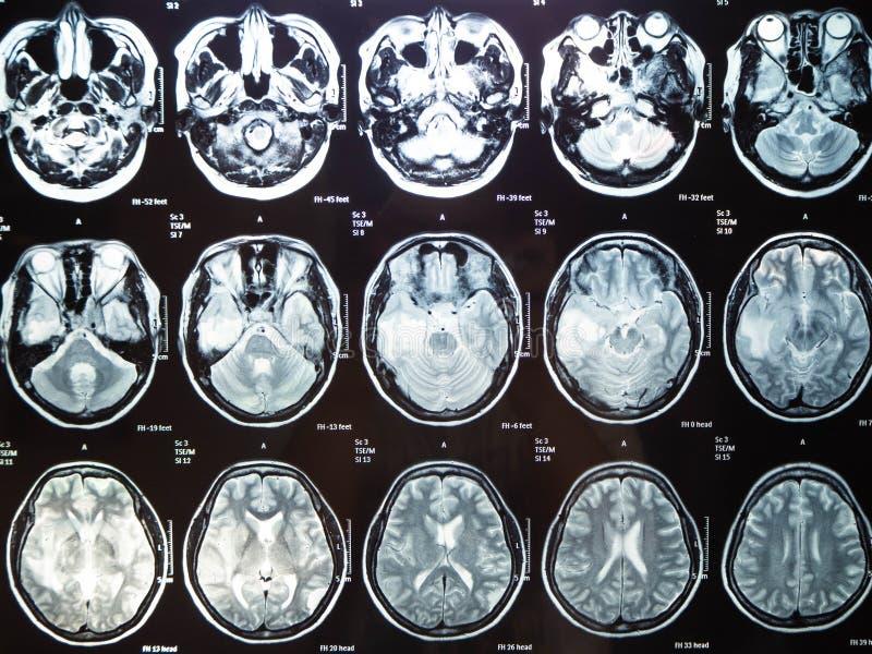 Tumor cerebral del rayo de la pel?cula x mi mather, Bangkok, Tailandia imagen de archivo
