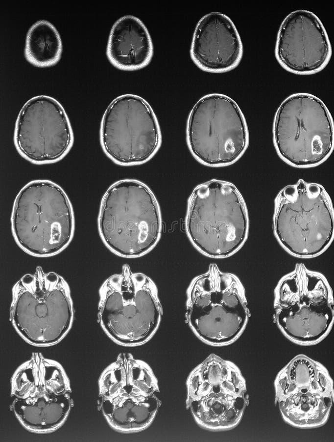 Tumor cerebral en mri foto de archivo
