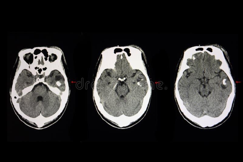 tumor cerebral enquistado imágenes de archivo libres de regalías