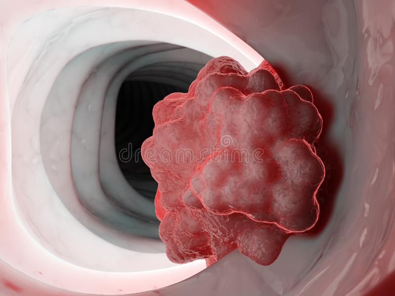 A tumor in the colon royalty free stock images