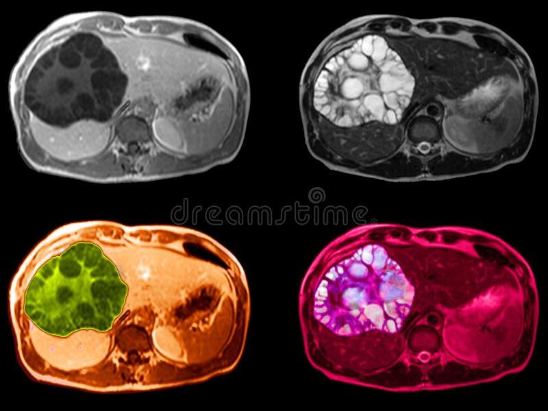 Tumor del hígado, SR. imagen fotos de archivo