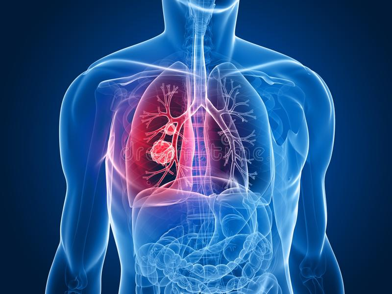 Tumor do pulmão ilustração do vetor