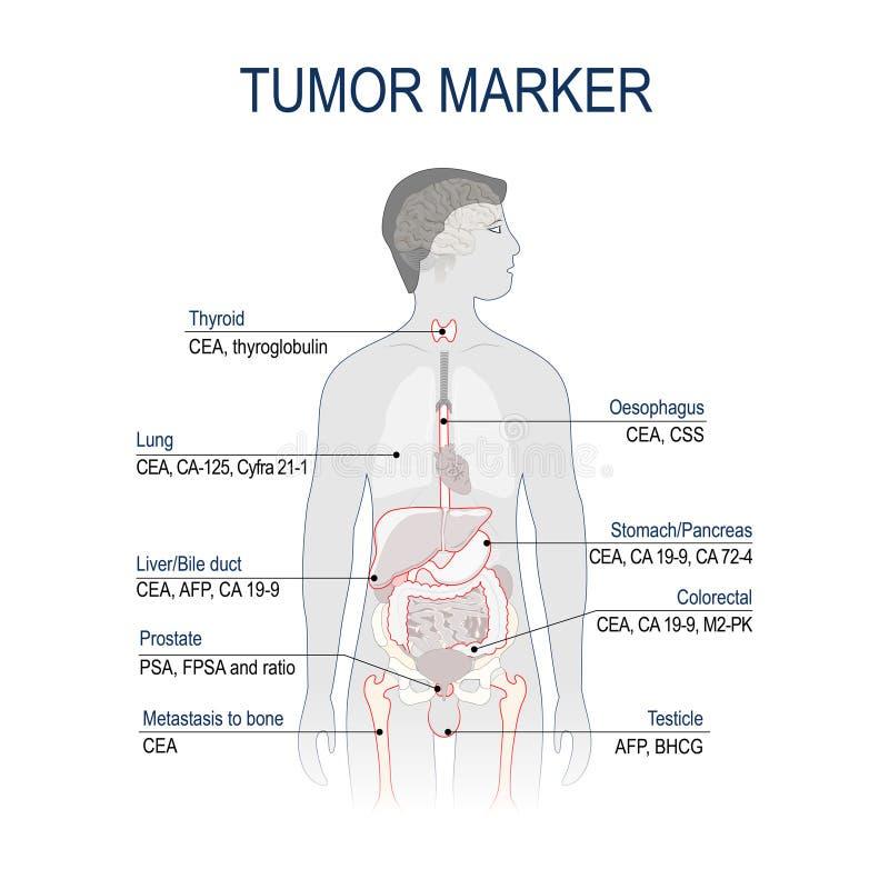 Tumor marker or biomarker. Cancer Development. Vector diagram forscience and medical use stock illustration