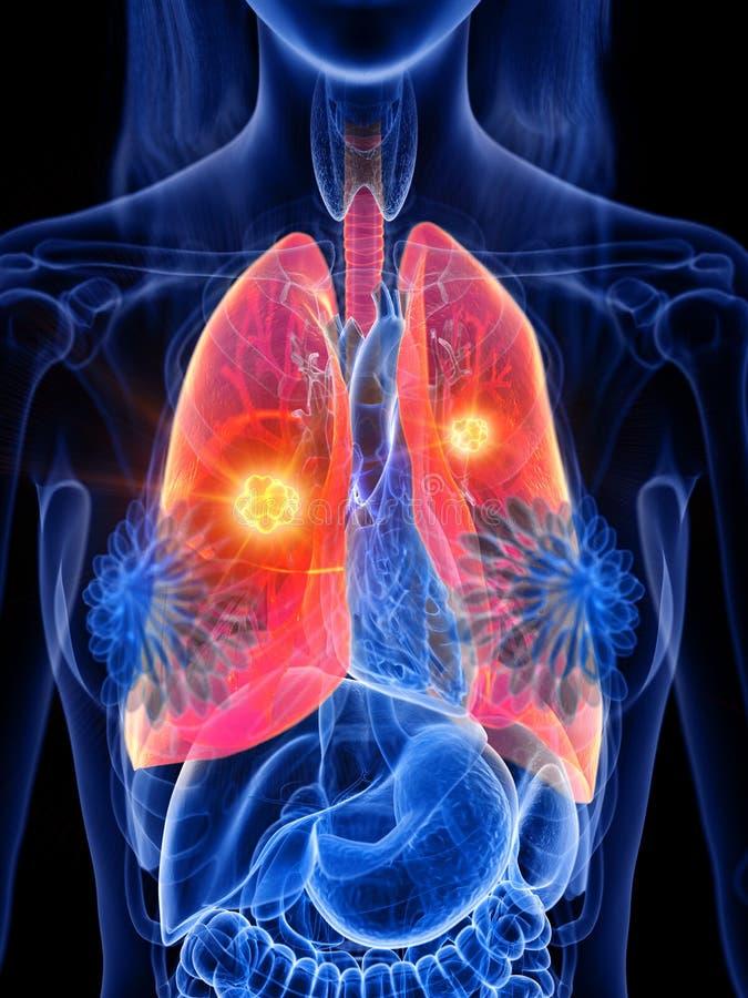 Tumore del polmone di una donna illustrazione di stock