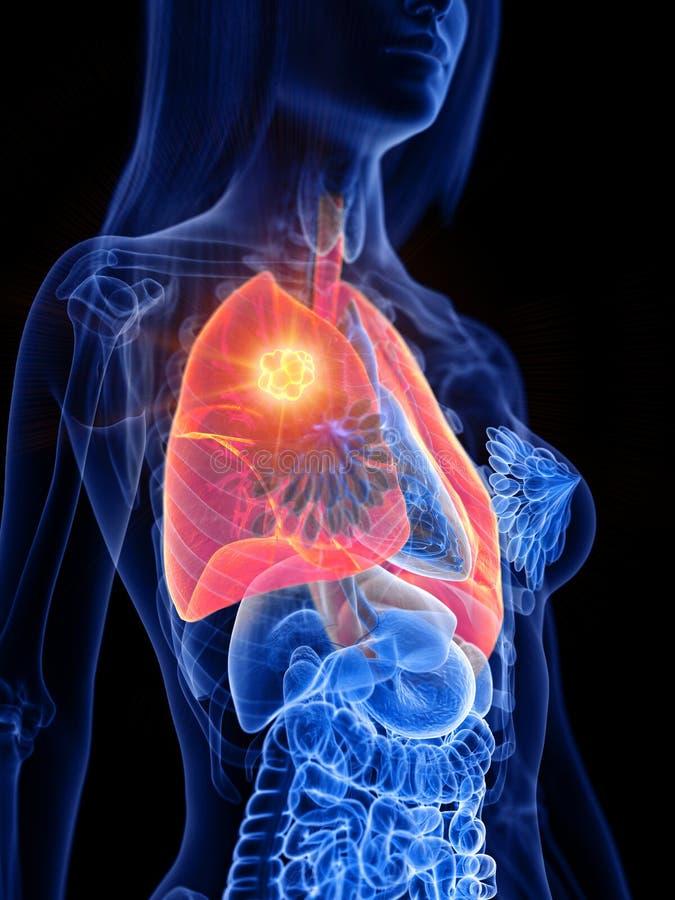 Tumore del polmone di una donna illustrazione vettoriale