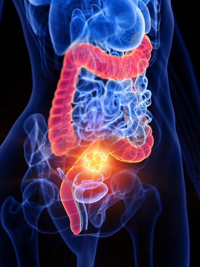 Tumore dell'intestino crasso di una donna illustrazione di stock