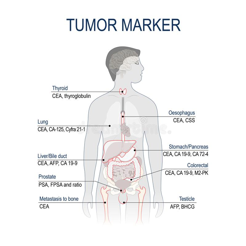 Tumorteller of biomarker stock illustratie