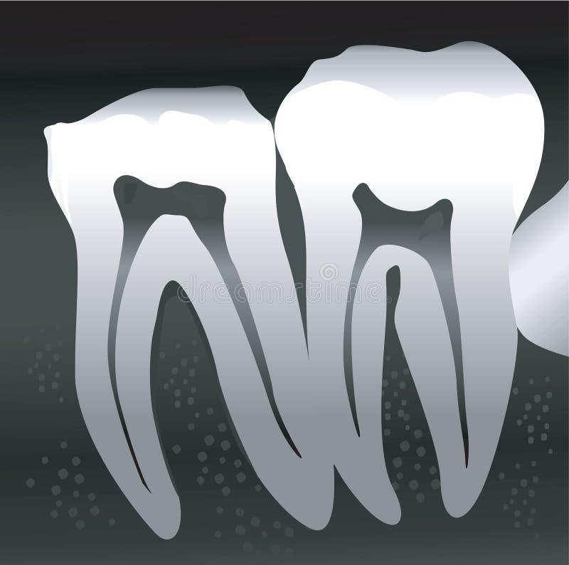 Tvärsnitt av tanden royaltyfri illustrationer