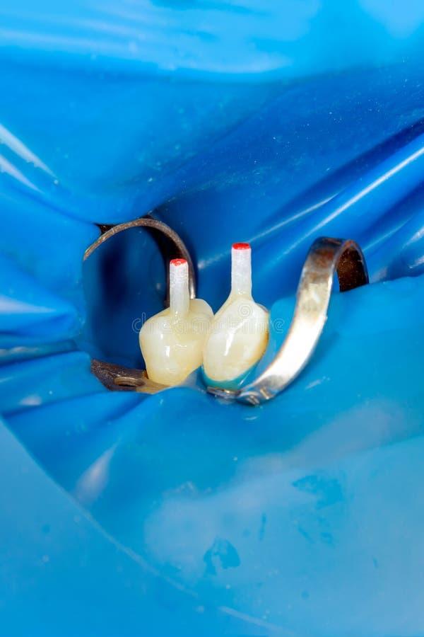 Två tuggasidotänder av övrekäken efter behandling av karies Återställande av tuggayttersidan med en photopolymerpåfyllning royaltyfri foto