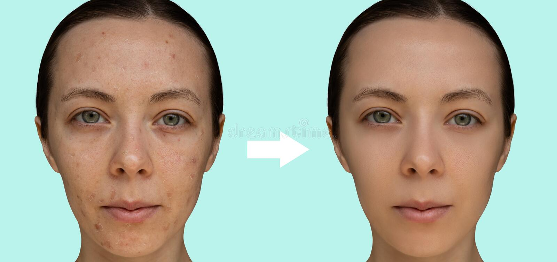 Twarz młoda dziewczyna po kosmetycznej procedury chemiczny obieranie w górę fotografia stock