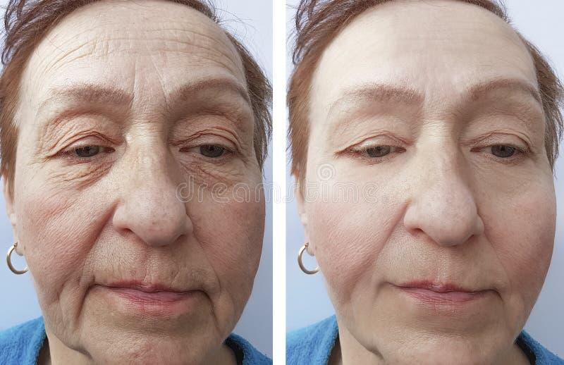 Twarz starej kobiety traktowania skutek podnosi zmarszczenie korekcję przed i po procedurami zdjęcia stock