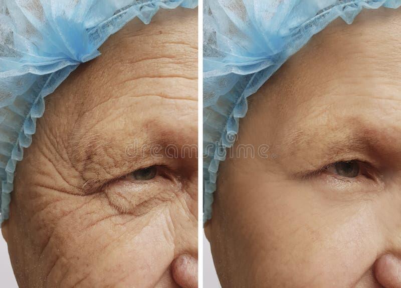Twarz stary człowiek marszczy przed i po operacji procedurami obrazy royalty free