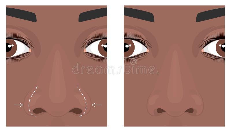 Twarzy front_Wide nosa operacja 2 ilustracji