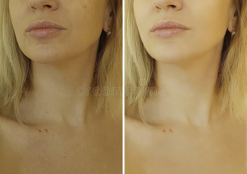 Twarzy kobiety zmarszczenia before and after obrazy stock