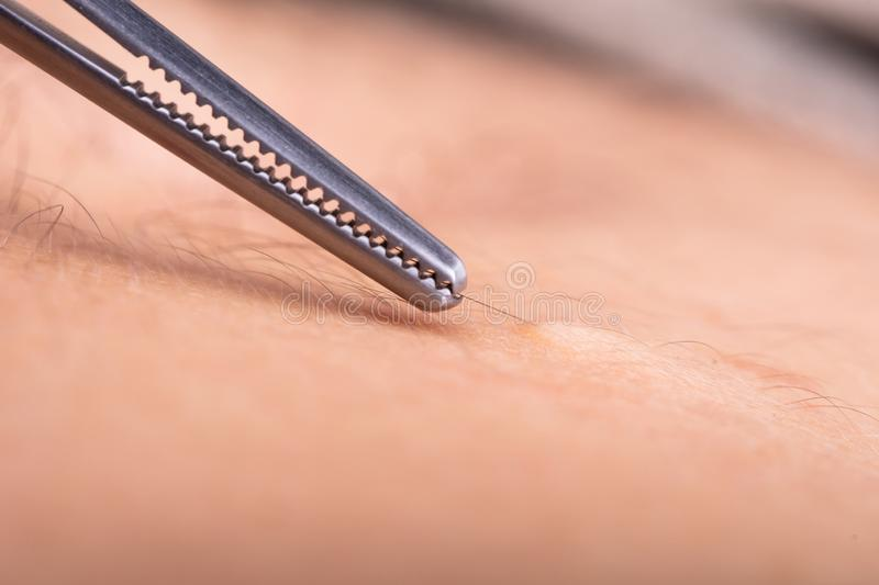 Tweezers Pulling Out A Hair From Skin. Extreme Close-up Of Tweezers Pulling Out A Hair From Skin royalty free stock image