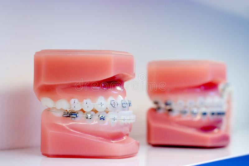 Two dental casts with braces on them on white background stock photography