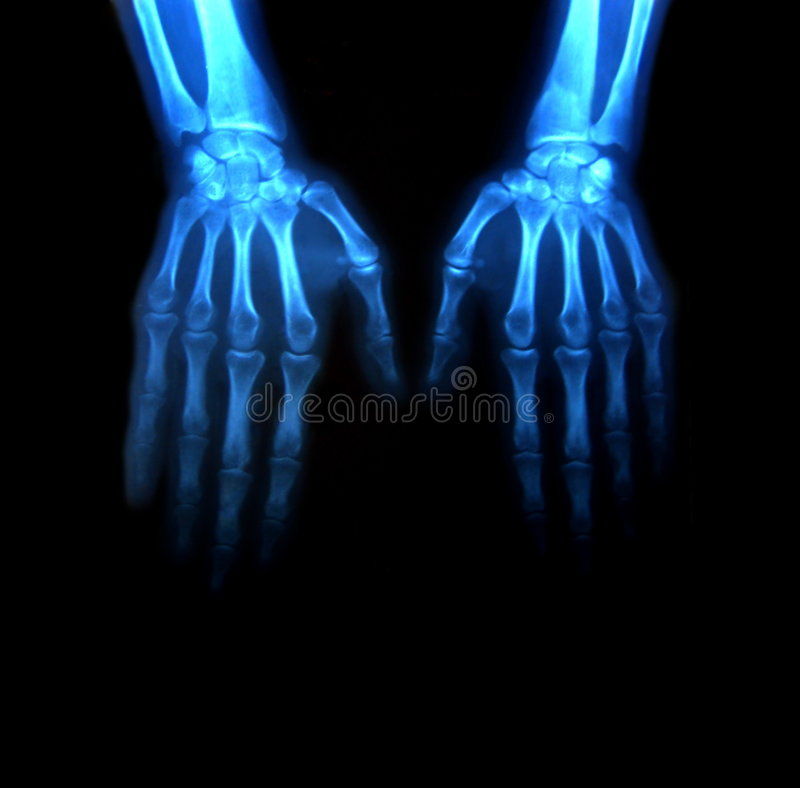 Free Two Hands In X-rays Stock Images - 3005584