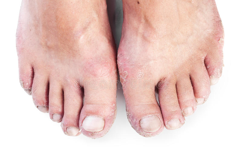Two male feet with eczema isolated on white royalty free stock photography