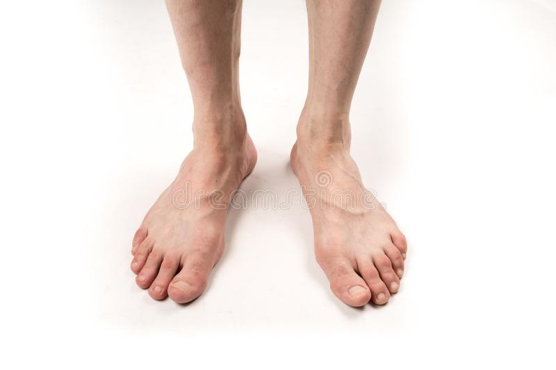 Naked legs of a man with varicose veins on a white background royalty free stock image
