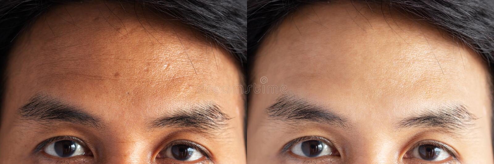 Two pictures compared effect Before and After treatment. skin with problems of freckles , pore , dull skin and wrinkles. Around forehead before and after stock images