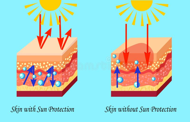 Two types of skin with and without sun protection, sunburn, vector illustration. Isolated vector illustration