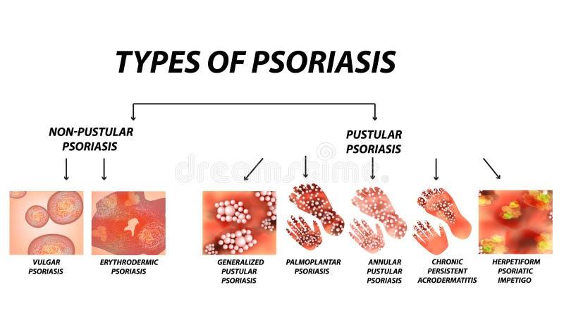 Typ łuszczyca Krostowaty i krostowaty Ordynarny, erythroderma, erythrodermic łuszczyca, wytrwały acrodermatitis ilustracja wektor