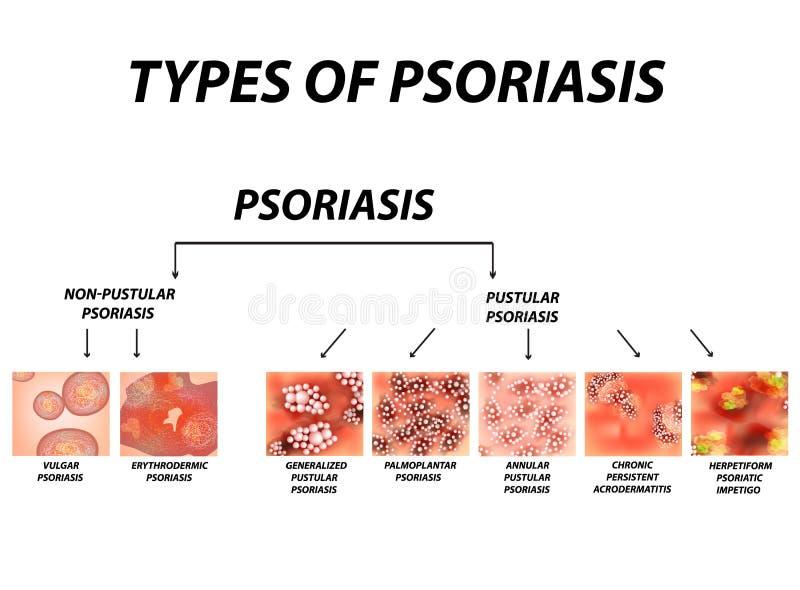 Typ łuszczyca Krostowaty i krostowaty Ordynarny, erythroderma, erythrodermic łuszczyca, wytrwały acrodermatitis ilustracji