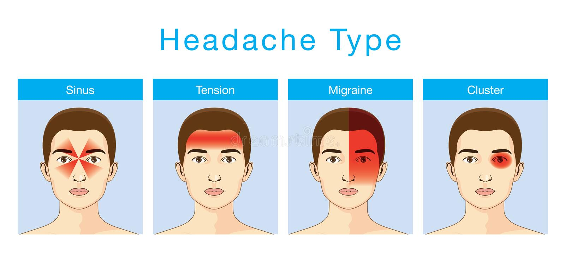 Typ av huvudvärken stock illustrationer