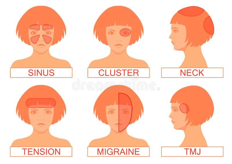 Typ av huvudvärken smärtar vektor illustrationer