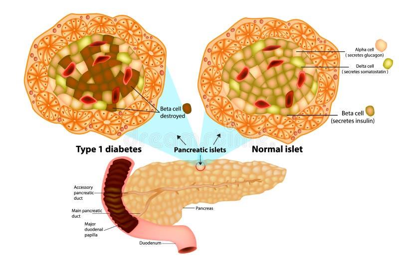 Typ - 1 förstörda sockersjukabetacell stock illustrationer